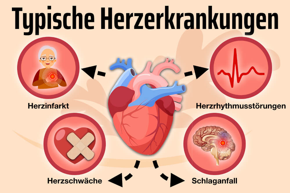 Herzkrankheiten Herz Krank Herzinfarkt Herzschwaeche Herzrhythmusstoerung Grafik