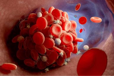Thrombose: Symptome, Ursachen, Behandlung