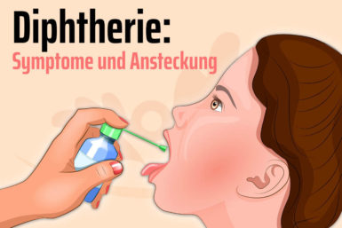 Diphtherie: Symptome, Ansteckung, Therapie