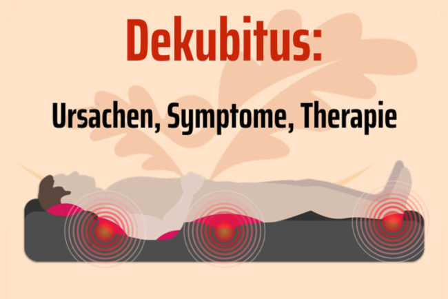 Dekubitus: Ursachen, Symptome, Therapie