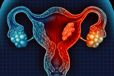 Gebärmutterhalskrebs: Symptome, Diagnose, Heilung
