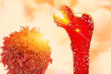 Knochenkrebs: Symptome, Diagnose, Heilung