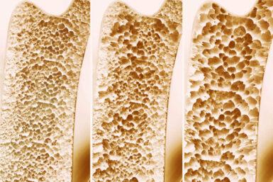Osteoporose: Wenn die Knochen brüchig werden