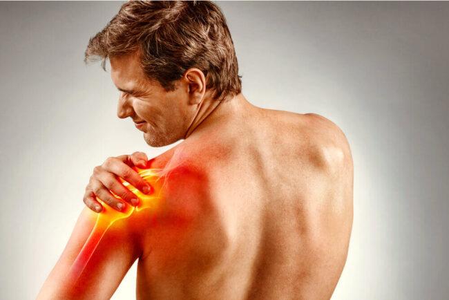 Schulterschmerzen: Harmlos oder bedenklich?