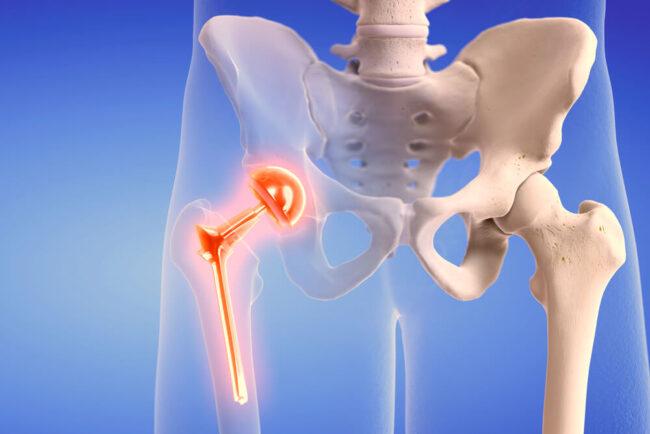 Hüftprothese: Alles wieder wie neu?