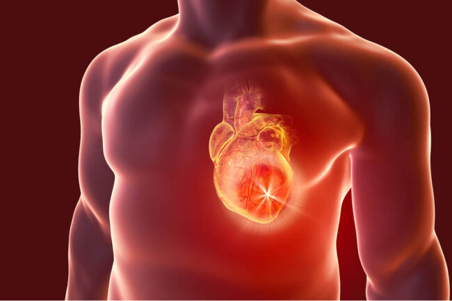 Herzinfarkt: Symptome, Entstehung, Behandlung, Folgen